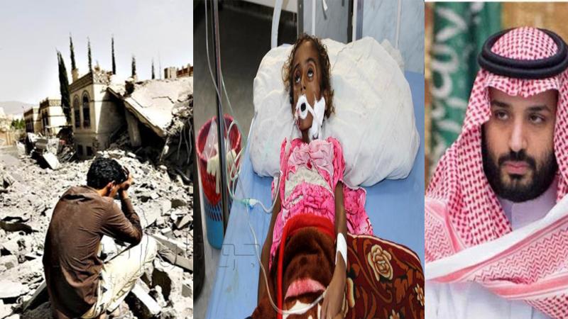 قحطی و گرسنگی و مرگ هدیه آل سعود به کودکان یمن